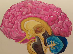 Perioperative_Brain_Picture