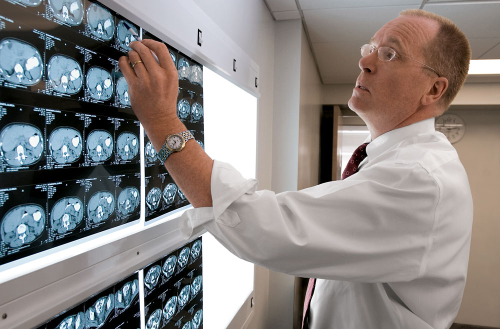 Doctor reviewing scans