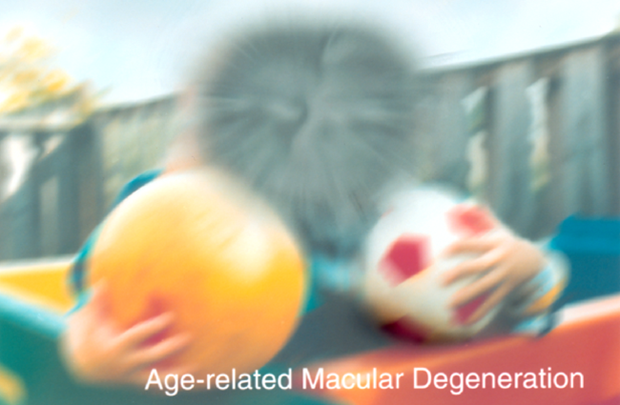 seeing with age-related macular degeneration