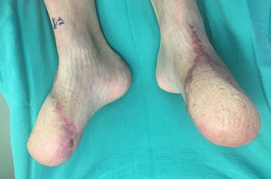 post-surgical limb salvage after