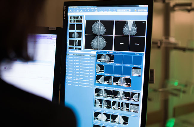 Image of computer screen displaying mammogram study