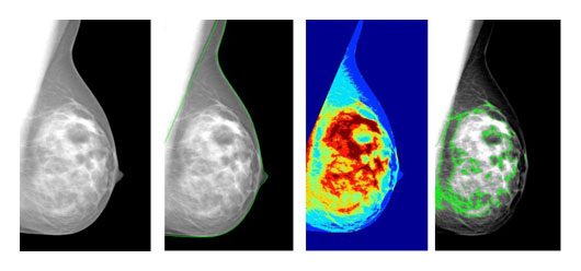 Digital mammogram and automated dense tissue segmentation by LIBRA