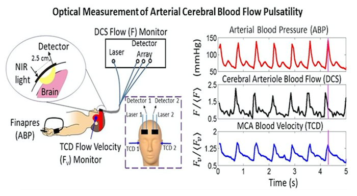CMROI graphic: Measurement of arterial blood flow pulsatility with optics.