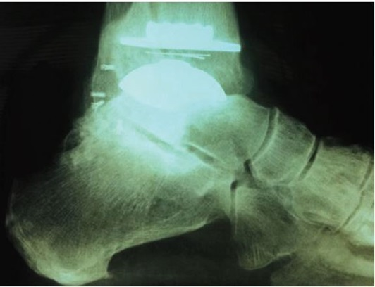 Ankle-xray_with_STAR_device_in_place