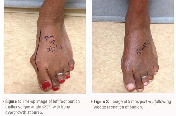 Surgical Management of Foot and Toe Deformities – Penn Medicine