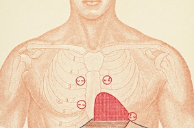 Cardiomyopathy image demonstrating auscultation points for diagnosis