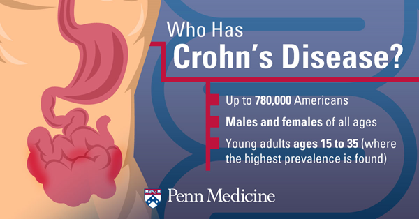Could It Be Crohn's Disease? What Your Gut Might Be Telling