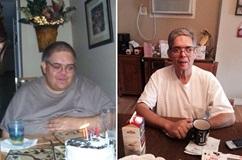 Weight Loss Surgery Patient Stories Penn Medicine