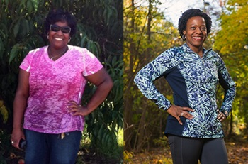 Erika, before and after bariatric surgery