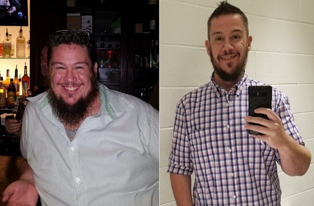 Shawn W shown before and after weight-loss surgery