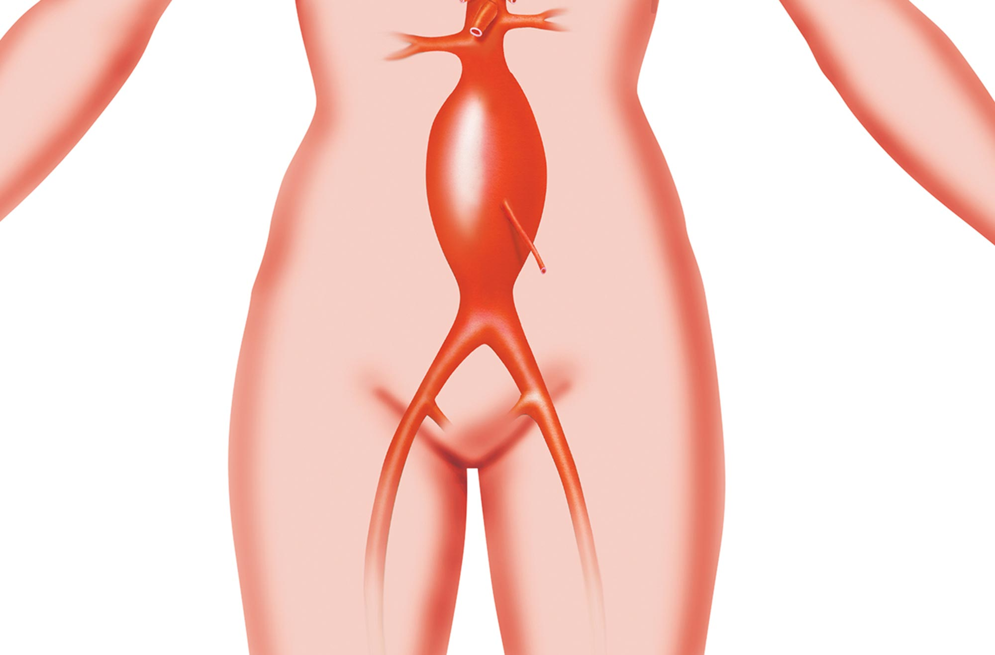 Illustration Of An Abdominal Aortic Aneurysm