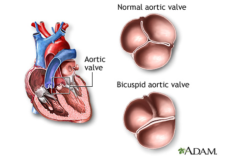 Illustration of a bicuspid aortic valve