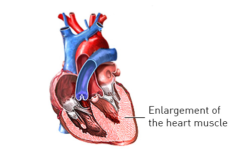 Illustration of hypertrophic cardiomyopathy