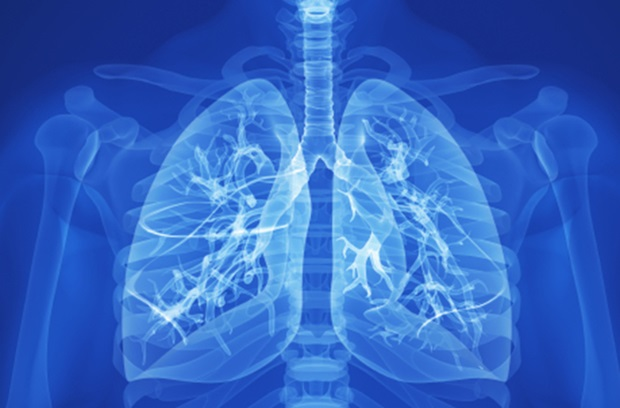 Stock photo of lung x-ray