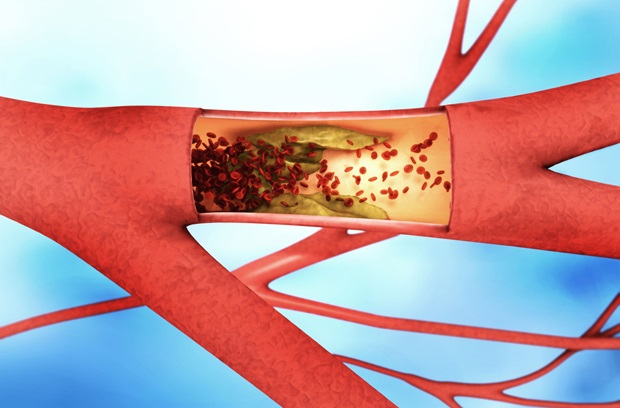 Peripheral artery disease illustration