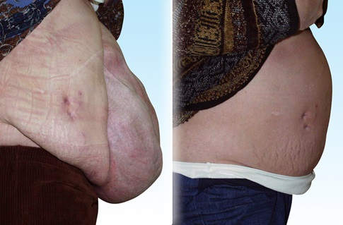 Before and after images of an abdominal wall reconstruction