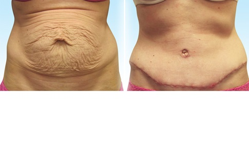 Before and after images of an abdominoplasty