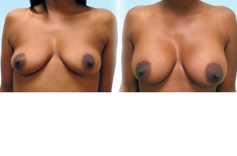 Before and after images of a breast augmentation
