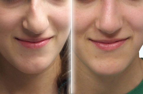 Before and after images of a nasal deformity repair