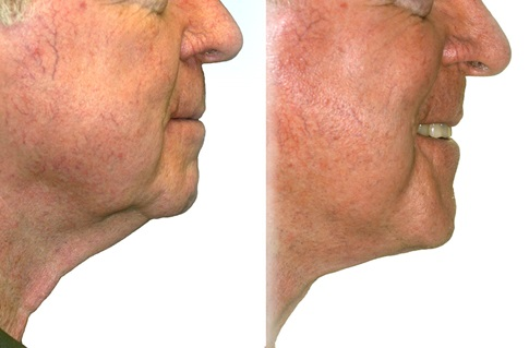 Before and after images of a facelift