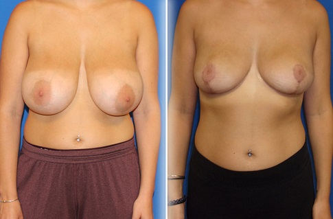 Breast Reduction Before and After Example 2