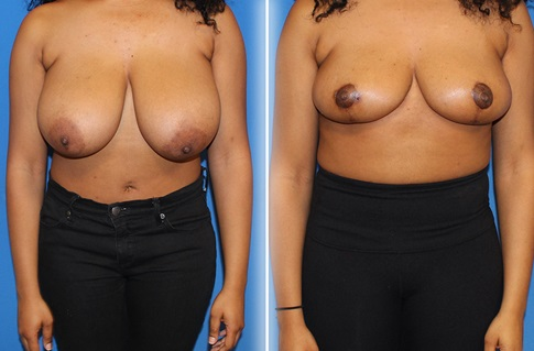 Breast Reduction Before and After Example 3