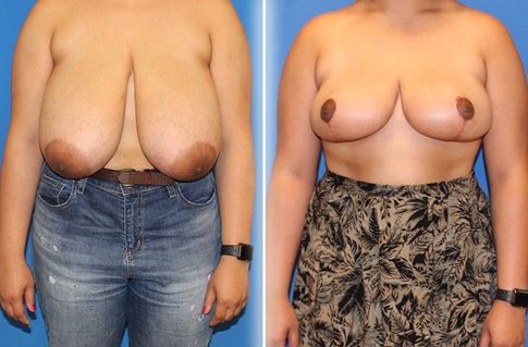 Breast Reduction Before and After Example 5