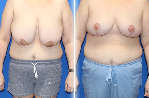 Breast Reduction Before and After Example 6