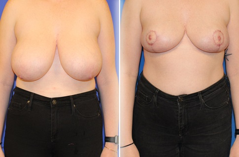 Breast Reduction Before and After Example 7