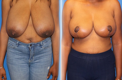 Breast Reduction Before and After Example 8