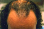 Male Hair example 3 before