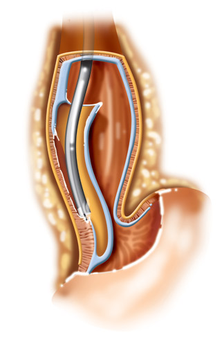 Fig 2. Esophageal achlasia