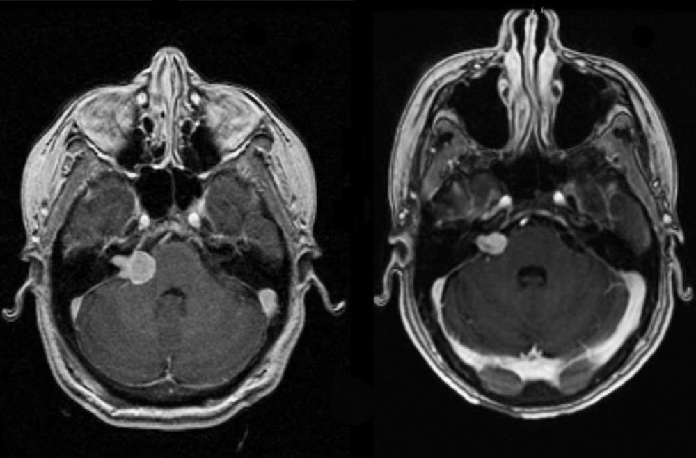 Paired MRIs demonstrating effect of Gamma Knife on acoustic neuroma.