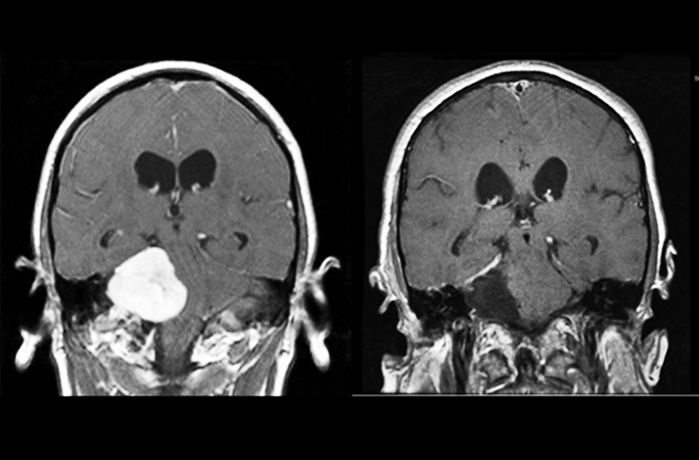 Paired MRIs demonstrating before/after for acoustic neuroma.