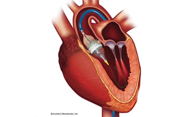 Image of the heart during transcatheter aortic valve replacement
