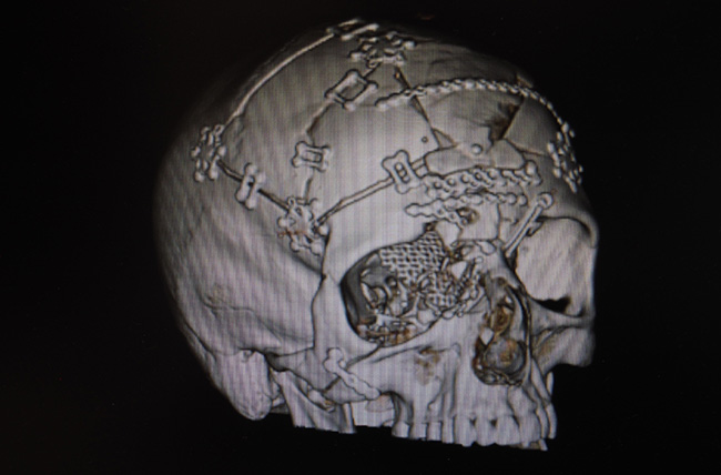 Skull x-ray after craniofacial reconstruction