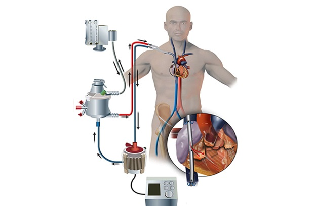 Figure demonstrating process of extracorporeal mechanical oxygenation
