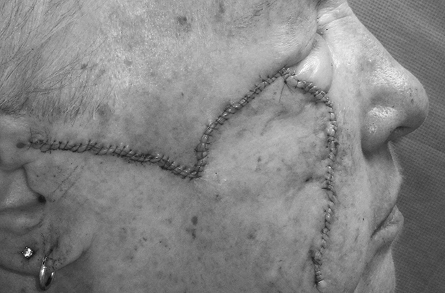 Side view of the face of a woman following extensive surgery to remove melanoma