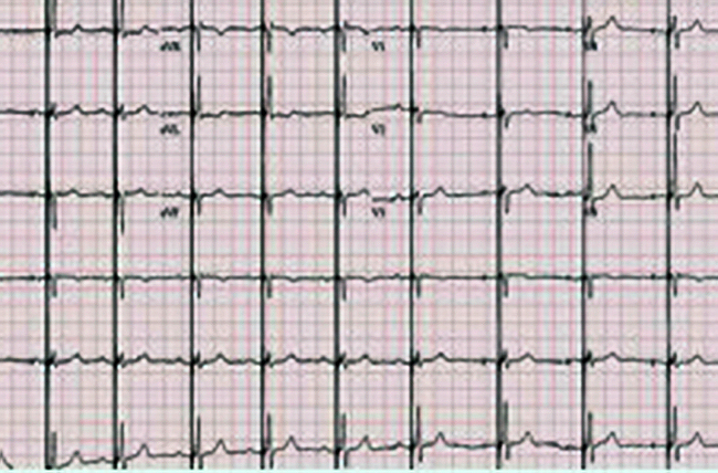 Chart shows narrow QRS resulting from HIS-bundle pacing