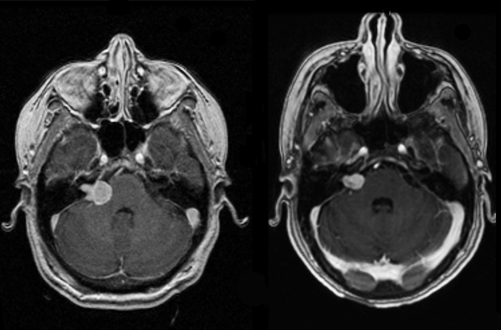 Before/after coronal MRI scan with contrast demonstrates a large acoustic neuroma in a 38-year-old patient and its removal after microsurgery.