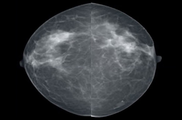 Routine two-dimensional digital mammogram