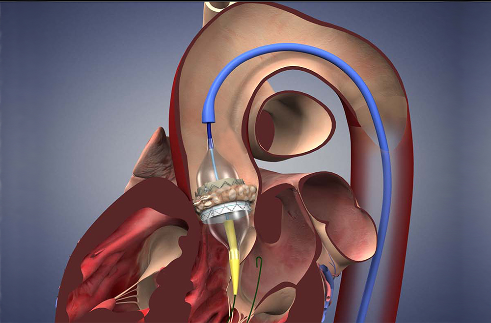 Illustration of transcatheter aortic valve replacement procedure.