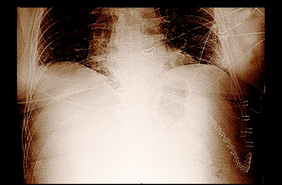 A chest x-ray demonstrating titanium plates used to knit a separated rib to the thoracic cage after chest wall injury.