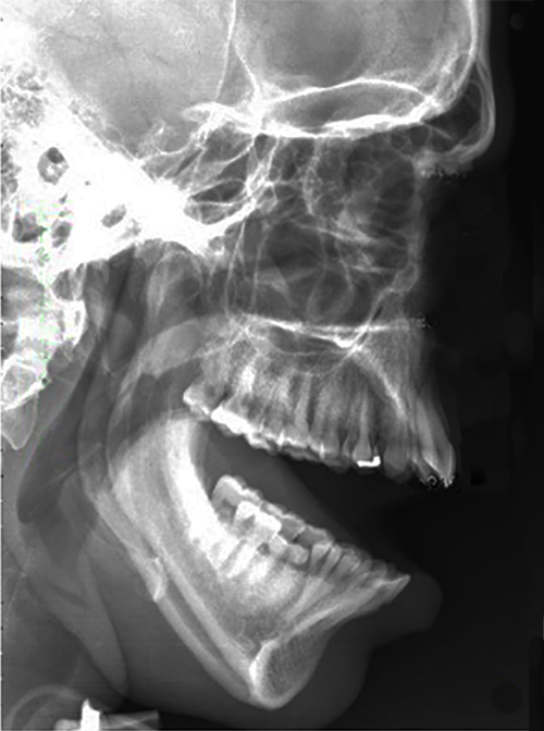 Management Of Recurrent Dislocation Of The Temporomandibular Joint