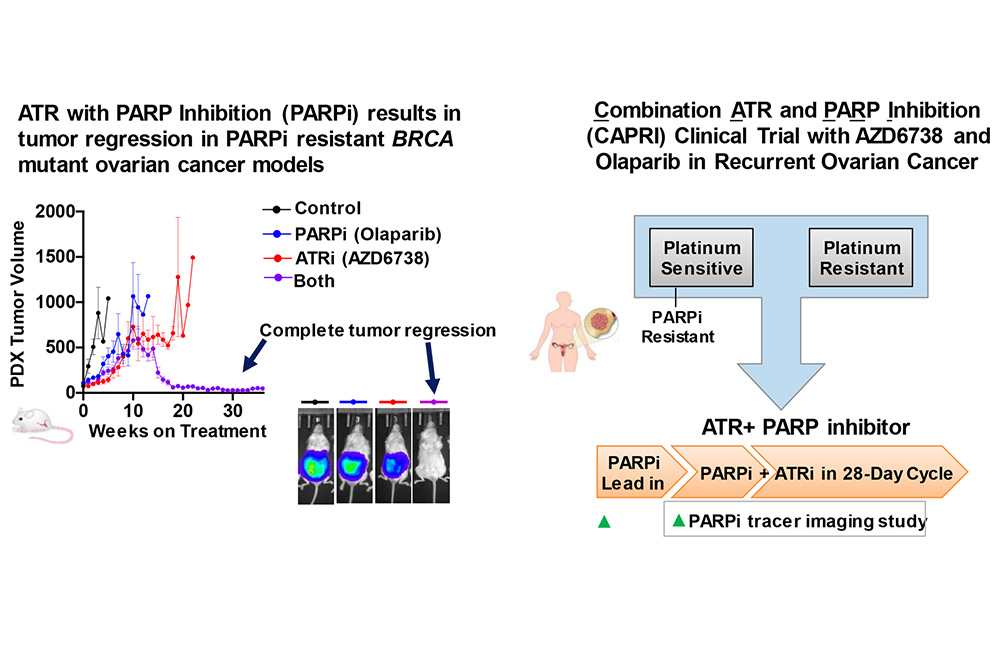 Enrolling Clinical Trials Combination Atr And Parp Inhibitor Capri Trial With Azd6738 And Olaparib In Recurrent Ovarian Cancer Penn Medicine