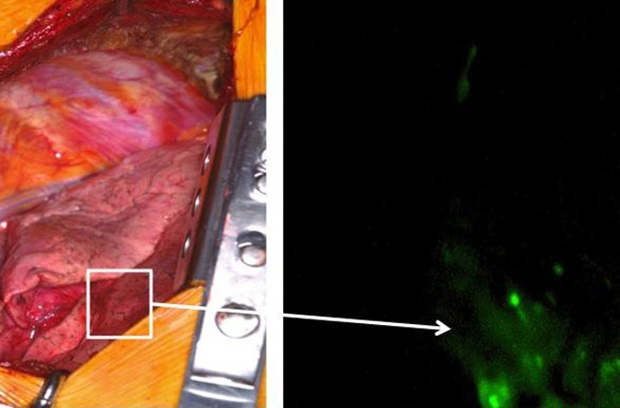 This image shows a tumor infused with fluorescent dye glowing under near-infrared light.