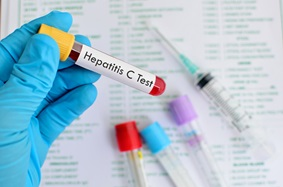 blood sample for hepatitis c lab test