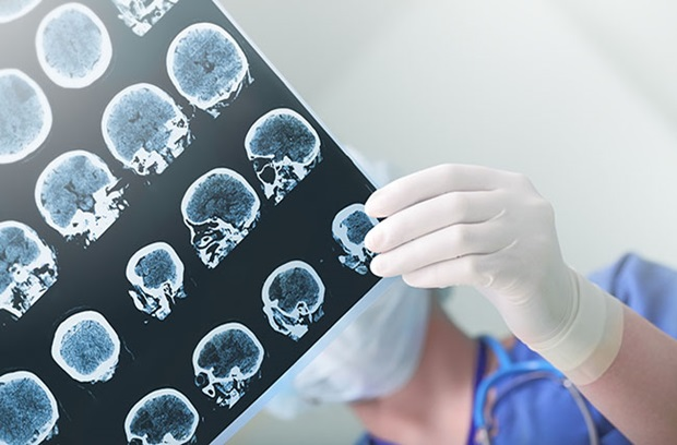 The Curious Case of Epileptic Seizures: What Triggers a