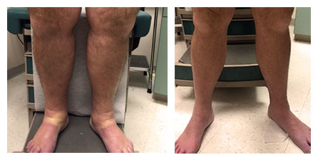 DVT Treatment Before and After