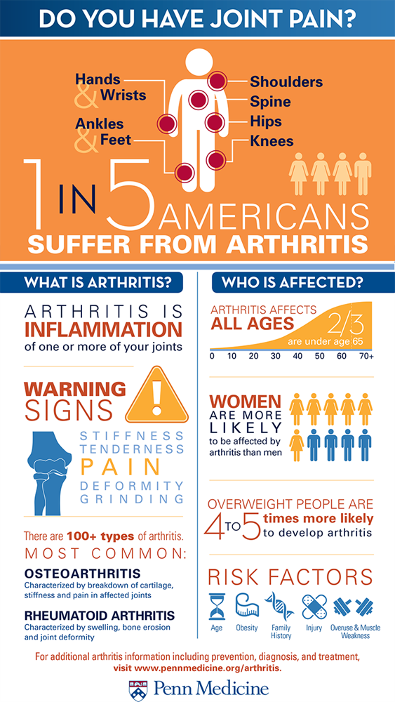 Arthritis risk infographic